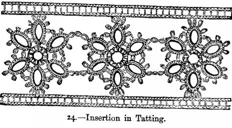 Insertion in Tatting.